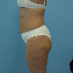 After liposuction-4