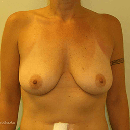 Before breast augmentation-1