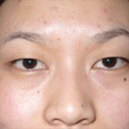 Before Plepharoplasty