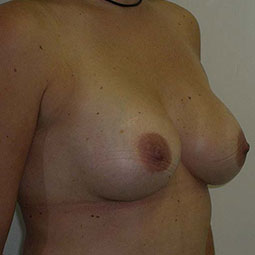 After Breast augmentation-1