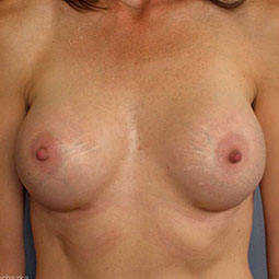 After Breast augmentation-2