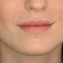 After dermal fillers